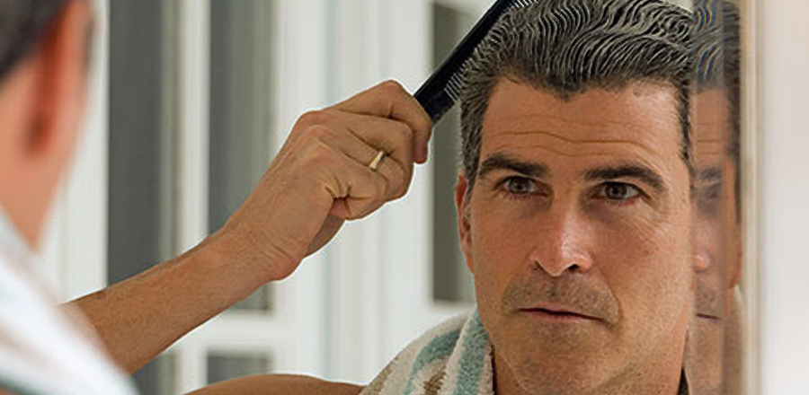 best-hair-loss-treatment-for-men